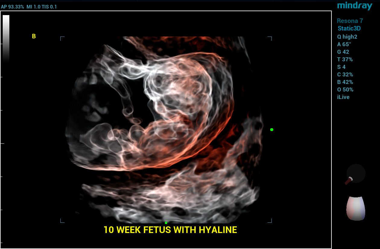 Resona 7 Image: Hyaline of 10 week fetus using DE10-3WU