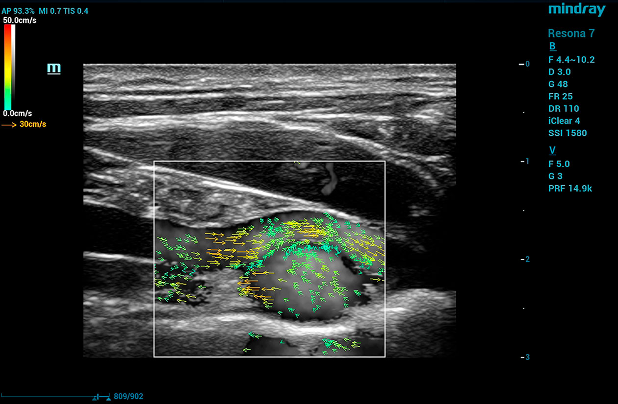 Resona 7 Image: V Flow of popliteal venous varix using L11-3U