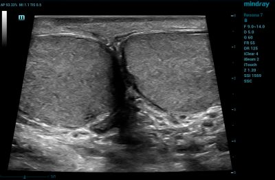 Resona 7 Image: B-mode of testicles using L14-5W