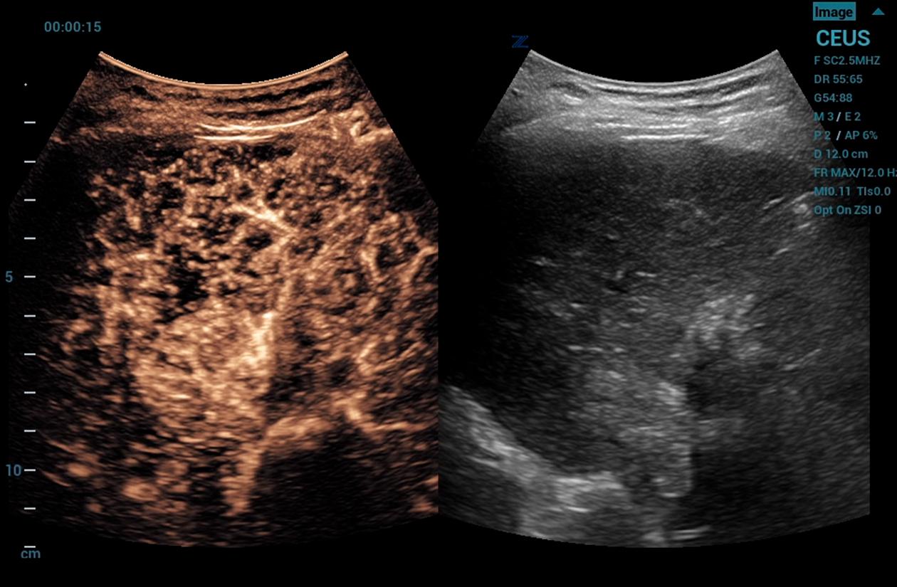ZS3 Image: CEUS of liver lesion using C6-1