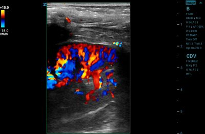 ZS3 Image: Color Doppler of renal using L10-5