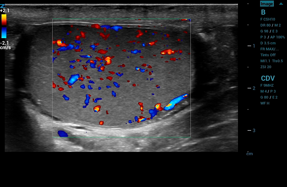 ZS3 Image: Color Doppler of testicle using L14-5w