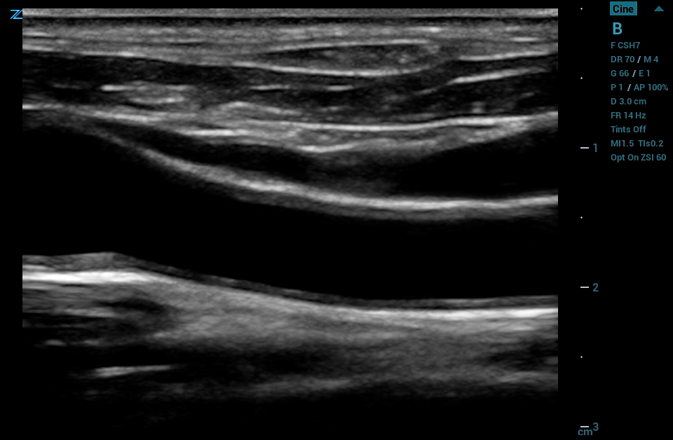 ZS3 Image: B-mode of carotid using L8-5