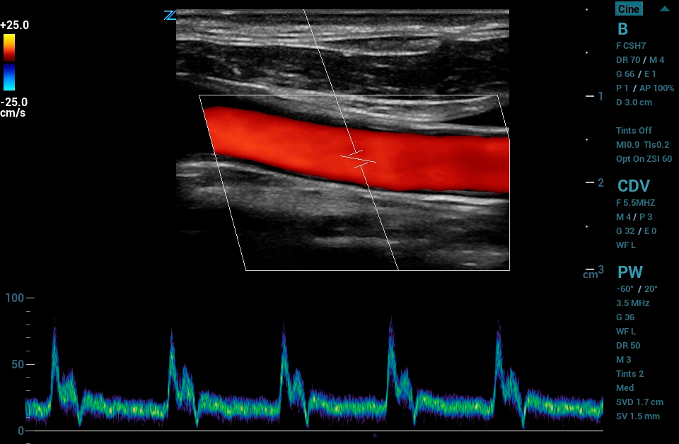 ZS3 Image: Color Doppler of carotid using L8-5