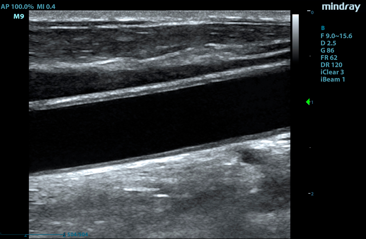 M9 Image: B-mode of carotid using L20-5s