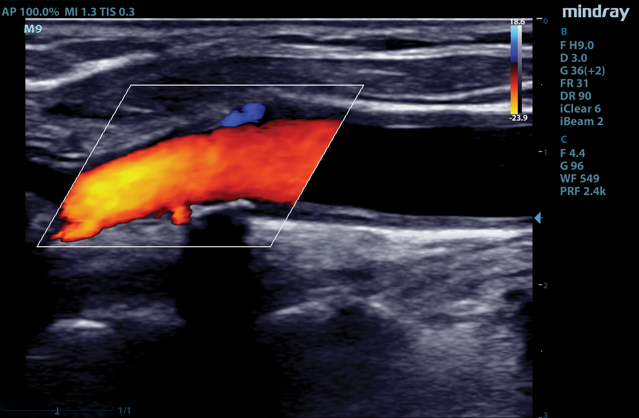 M9 Image: Color Doppler of carotid using L12-4s