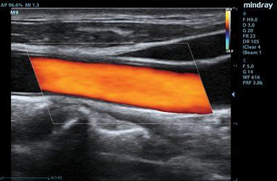 M9 Image: Color Doppler of carotid using L12-4s