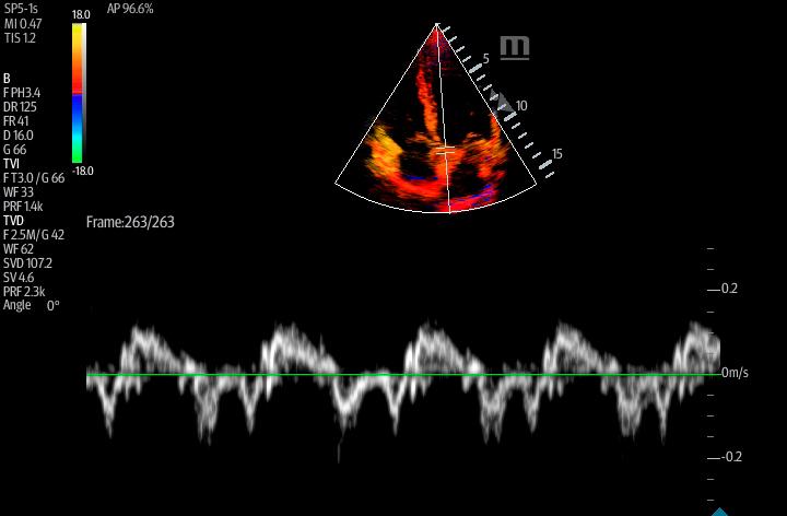 TE7 Image: Tissue Doppler of 4 chamber apical using SP5-1s