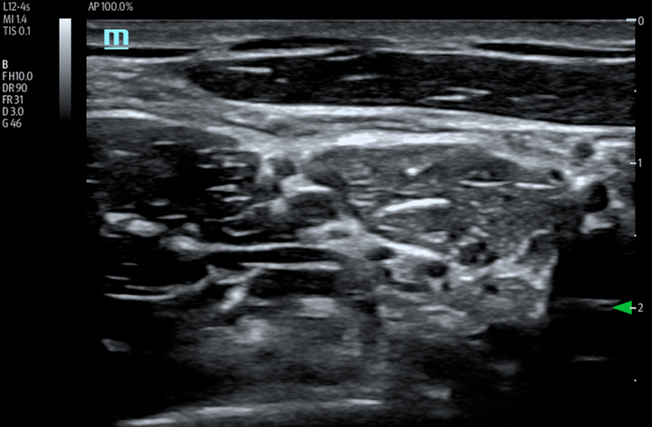 TE7 Image: B-mode of brachial plexus using L12-4s