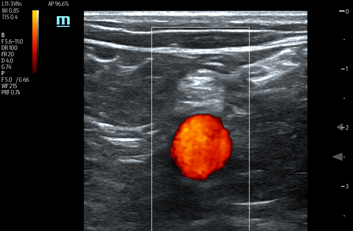 TE7 Image: Color Doppler of sciatic nerve popliteal using L11-3VNs
