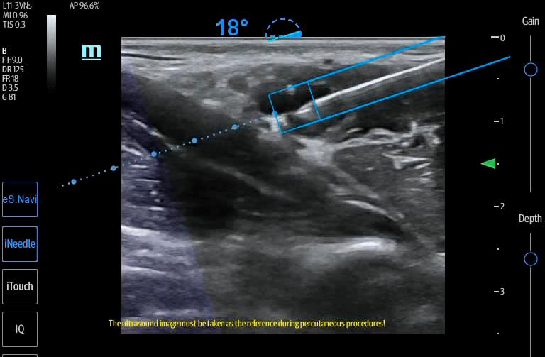 TE7 Image: eNavi during brachial plexus imaging using L11-3VNs