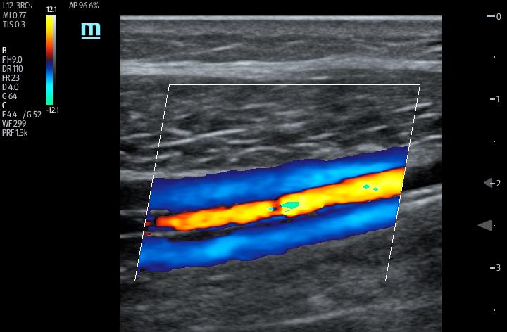 TE7 Image: Color Doppler of tibial vessels using L12-3RCs