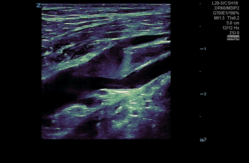 Z.One PRO image: B-mode femoral vein thrombus using L20-5