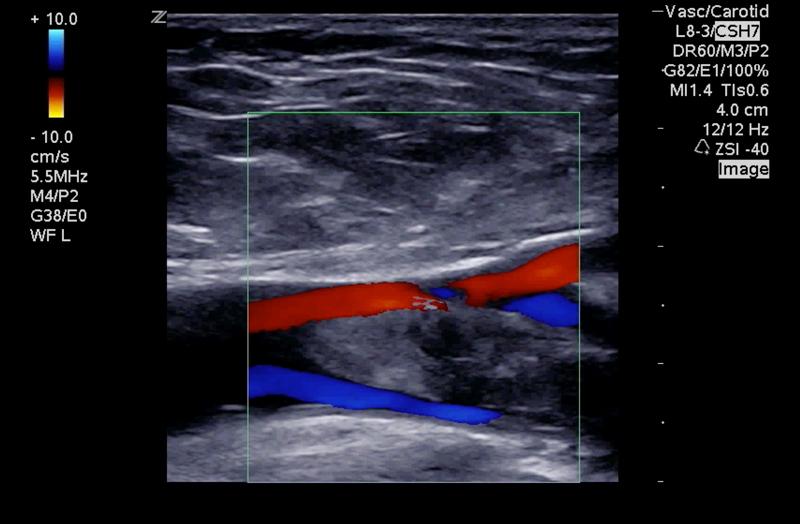 Z.One PRO image: Color Doppler of blood clot using L8-3
