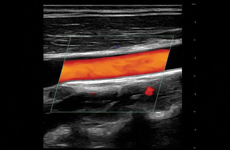 Z.One PRO image: Carotid artery