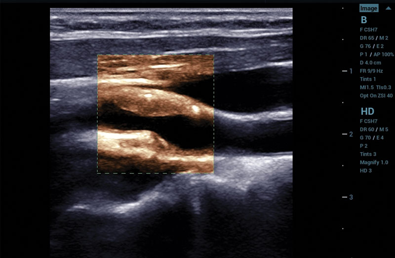 ZS3 Image: Carotid plaque with HD Scope