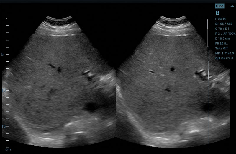 ZS3 Image: Dense Liver with Sound Speed Compensation