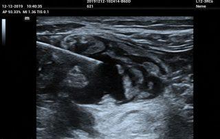 ME8 Image: brachial plexus