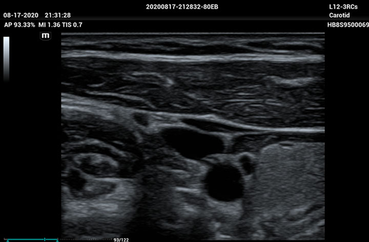 ME8 Image: jugular vein